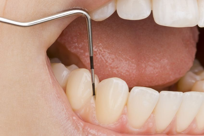 periodontal therapy